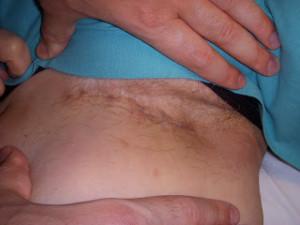Cicatrice invisibile, nascosta nella piega inguinale